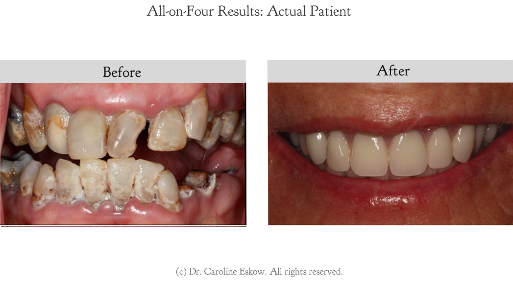 all-on-4-dental-implant-1