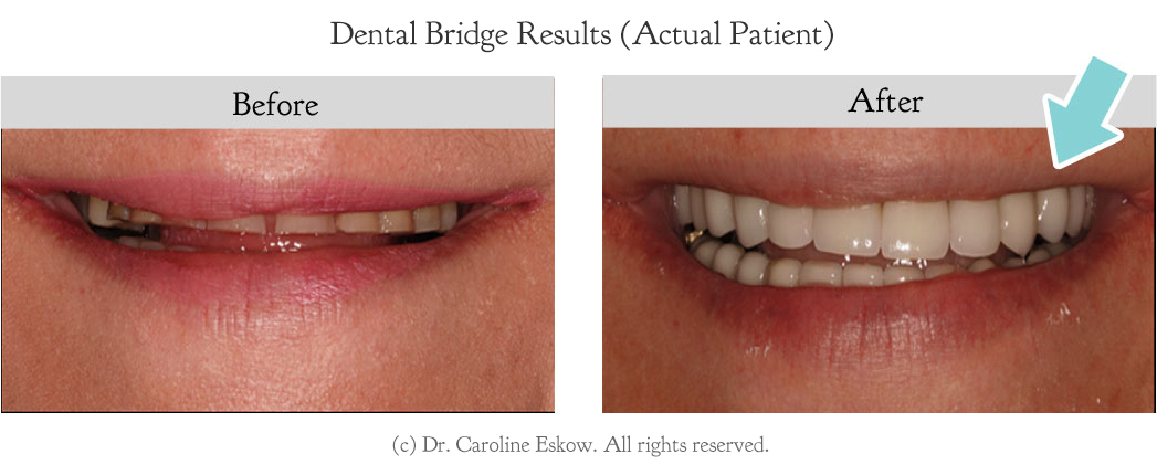dental-bridge-before-after