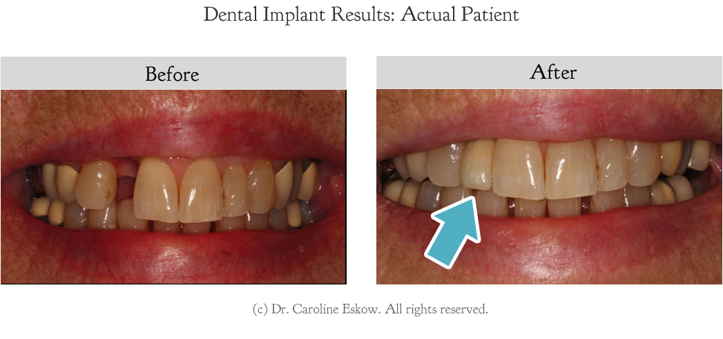 dental-implants-before-after-1