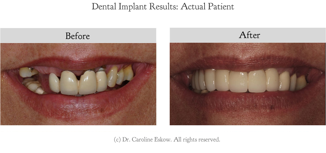 dental-implants-before-after-2