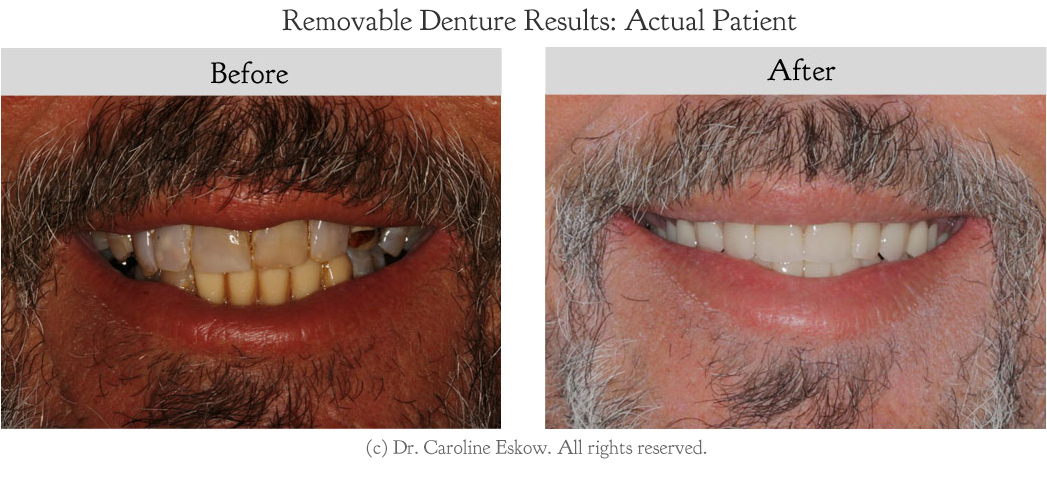 removable-dentures-before-after