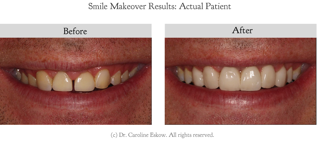 smile-makeover-before-after