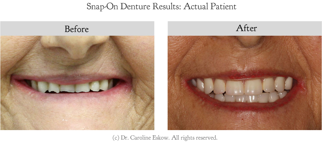 snap-on-denture-before-after