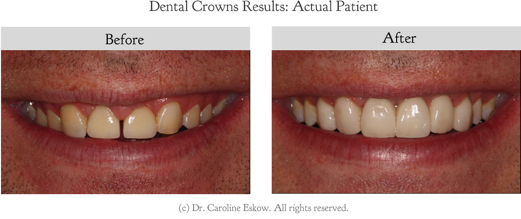 teeth-crowns-before-after