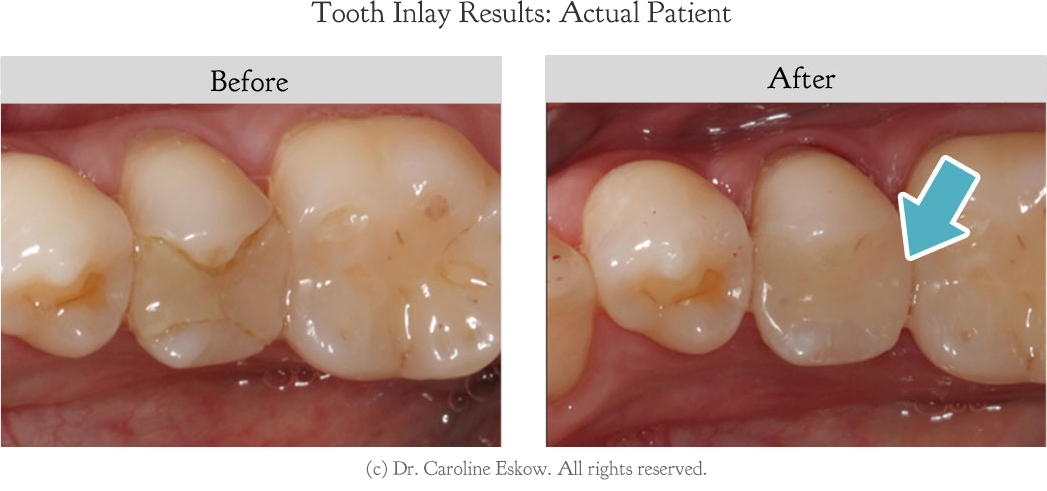 tooth-inlay-before-after
