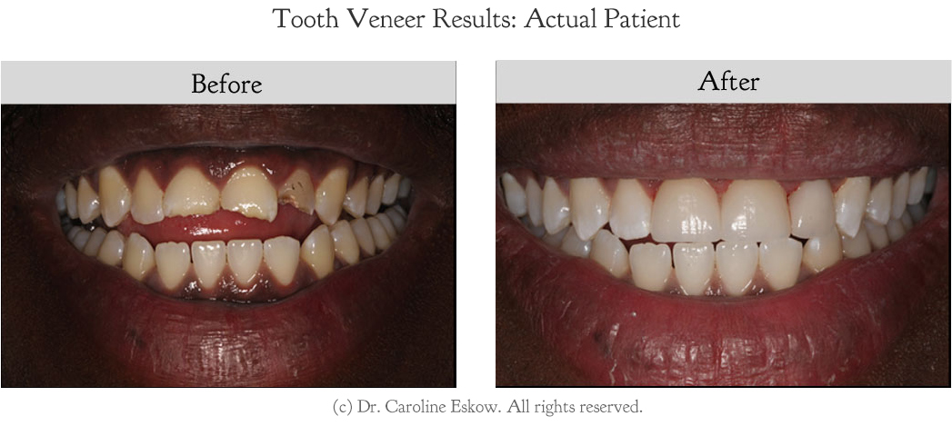 veneers-before-after-1